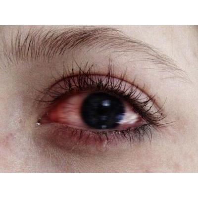 寝て起きたら目が腫れている!治し方が知りたい♡