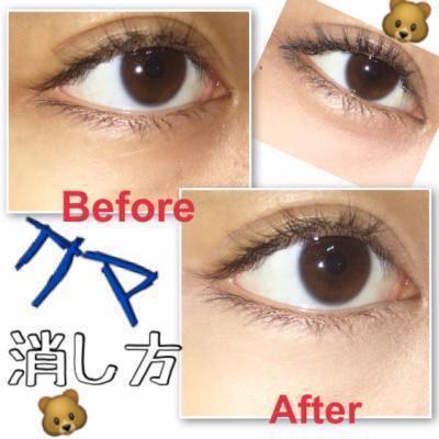 疲れ顔からさよなら!クマ目を治して目を大きくする方法まとめ