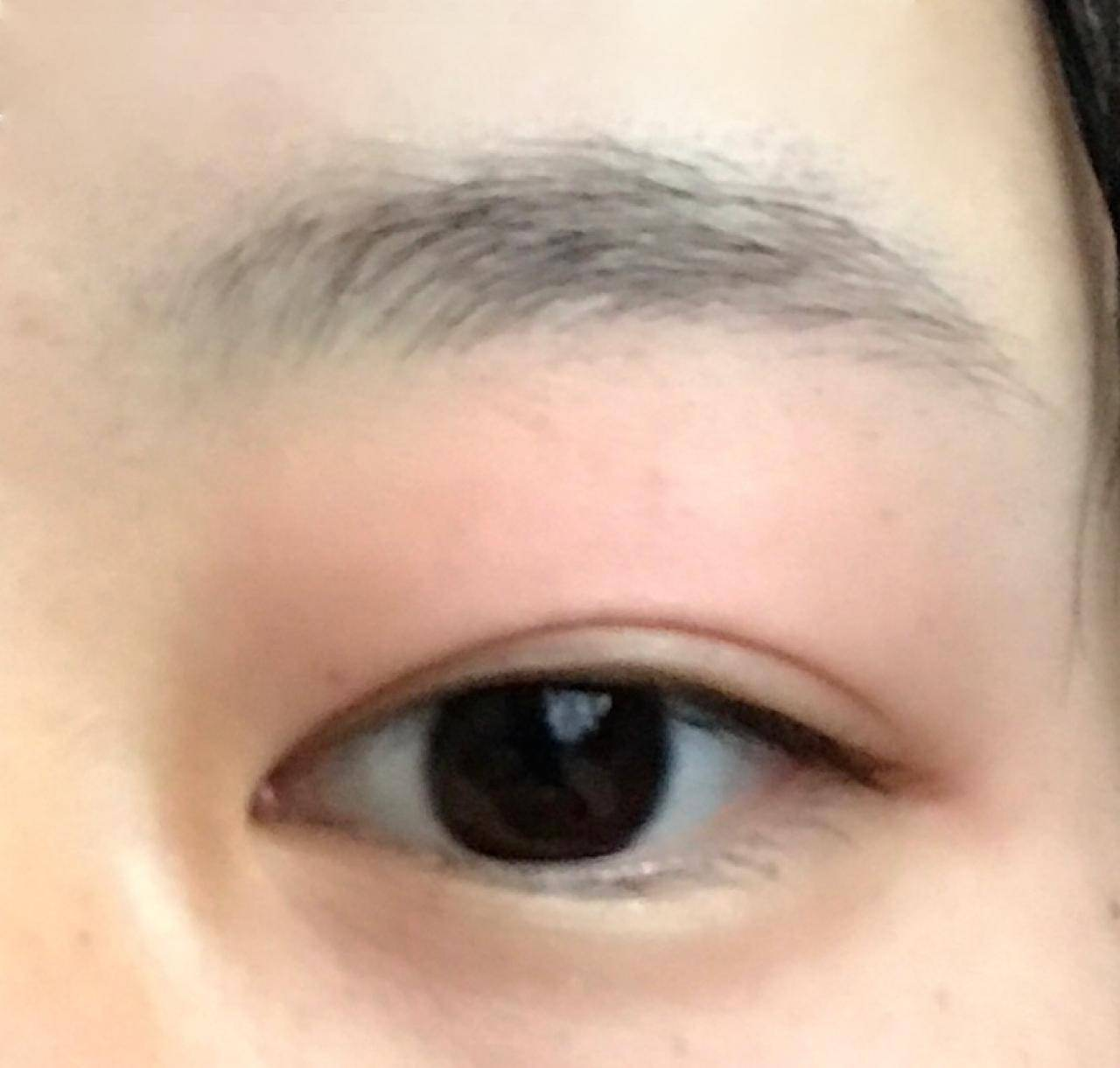 が 腫れる 目 赤ちゃん