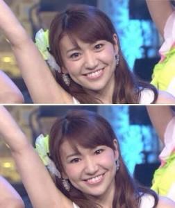 大島優子さんの涙袋