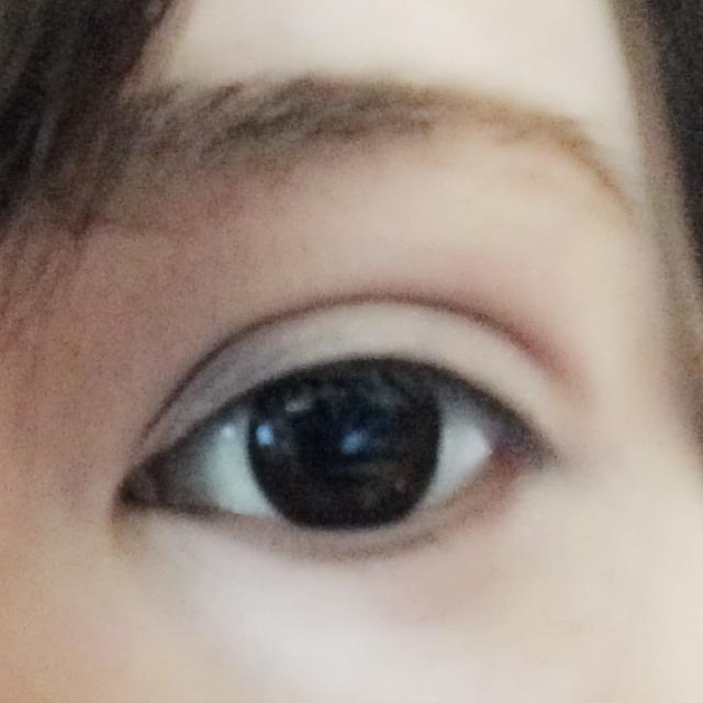 目を横長に大きく見せるダブルラインのBefore画像