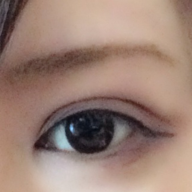 目を横長に大きく見せるダブルラインのAfter画像