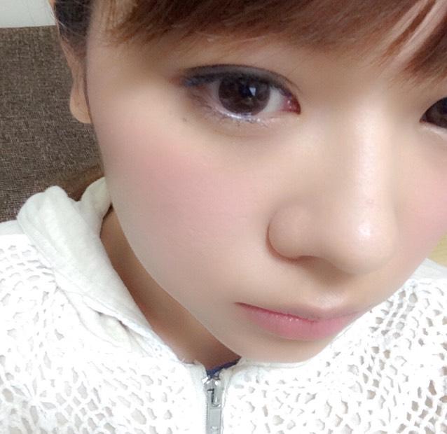 鼻プチのAfter画像