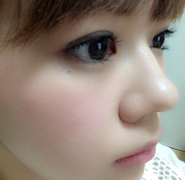 ちなみにSもつけてみました。鼻が一気に高くなりましたけど、やはりサイズが合わないのか痛かった…www