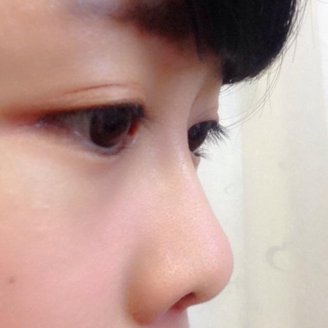 鼻プチレビューのBefore画像