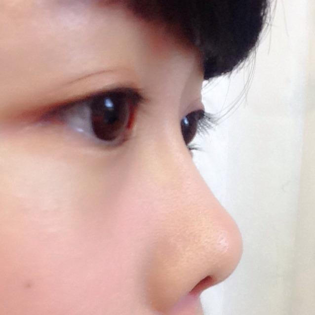 鼻プチレビューのAfter画像