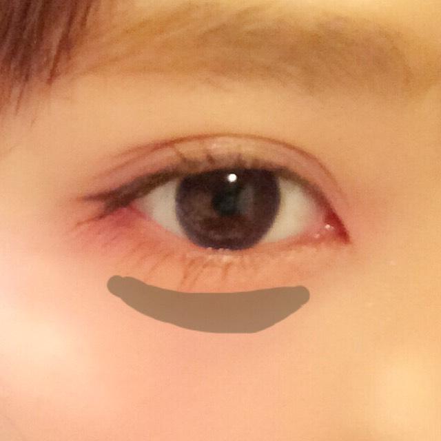 目の下に影をつくる