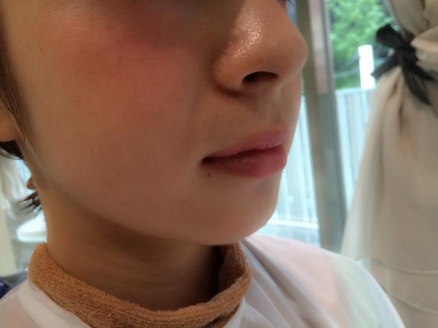 ⑤リップ 目元とチークに色味がしっかり入っているので、リップは基本薄めの色で! そこに中央のみ赤のviseを軽くのせ、透明のグロスを上唇の山の部分と下唇の中央のふちだけにつけます