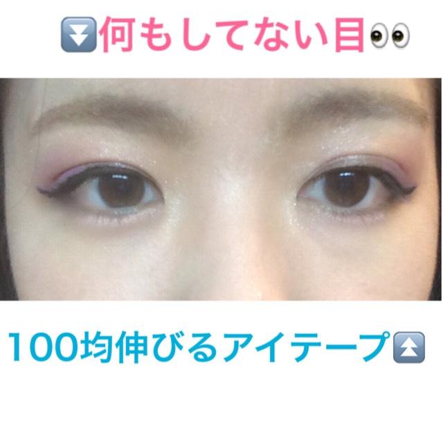 両目だとこんなふうです。  右目が腫れていたため、伸びるアイテープ使用しています。笑