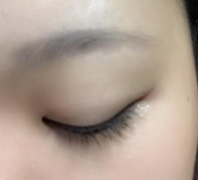 瞼を化粧水などで拭き取り、清潔にします