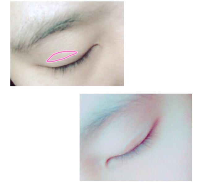 プッシャーなどで二重にしたい線を確認し、その線にそって絆創膏を貼ります。目を開けたりして確認しながら貼るといいです。絆創膏なので何回か貼り直せます