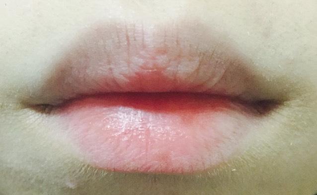 レッドメイク 唇のBefore画像