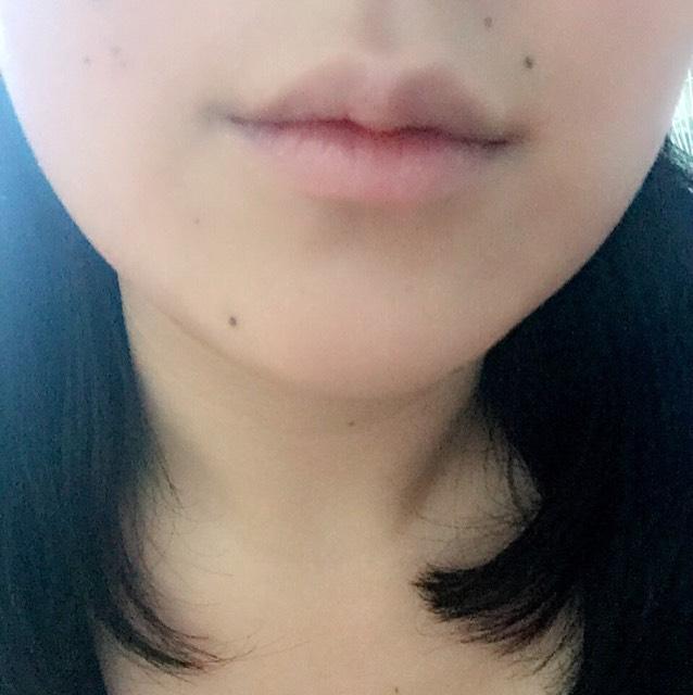 薄唇さん必見!ふっくら唇!のBefore画像