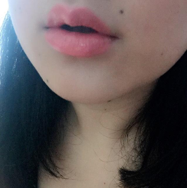 薄唇さん必見!ふっくら唇!のAfter画像
