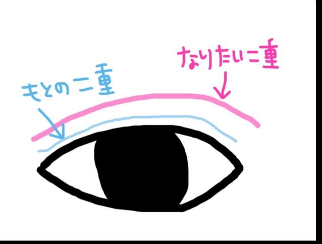 目を半目にしたらなりたい二重の線に伸ばした絆創膏を食い込ませながら貼り、そのまま目を開いたり閉じたりします  貼り方は真ん中→両側にグッと強めに食い込ませます