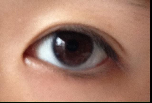 本日の目のBefore画像