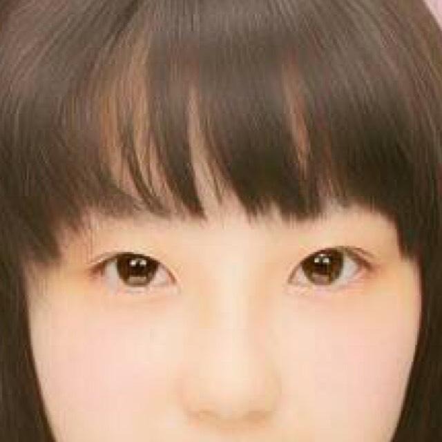 くちばしライン(^◇^)のBefore画像