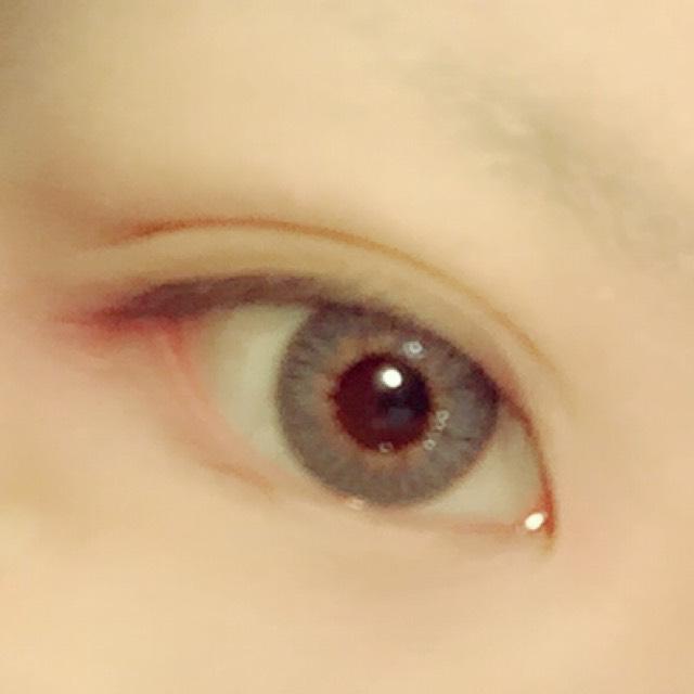 目の詳細のBefore画像
