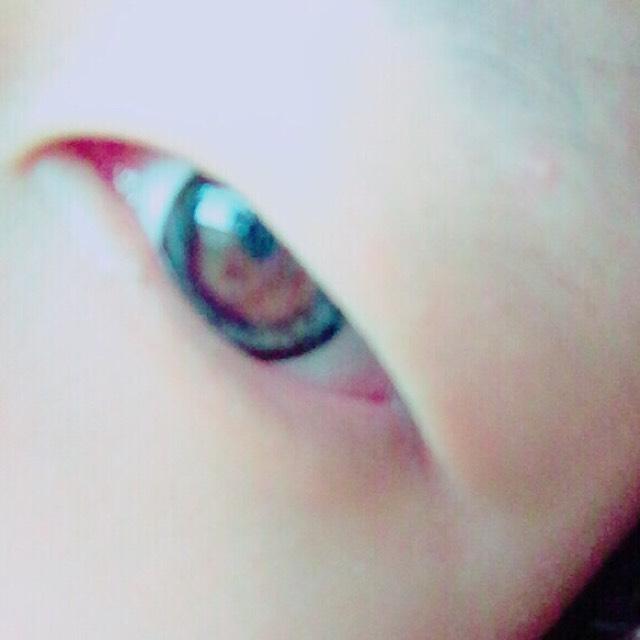 用各種方法打造雙眼皮♡のBefore画像