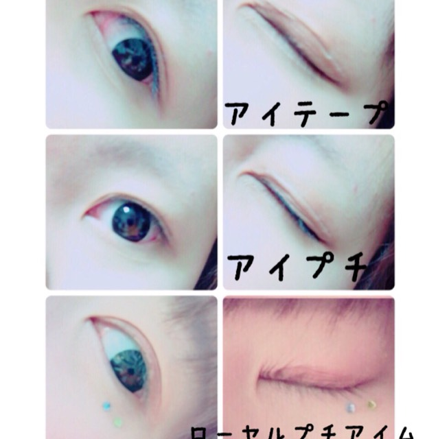 用各種方法打造雙眼皮♡のAfter画像