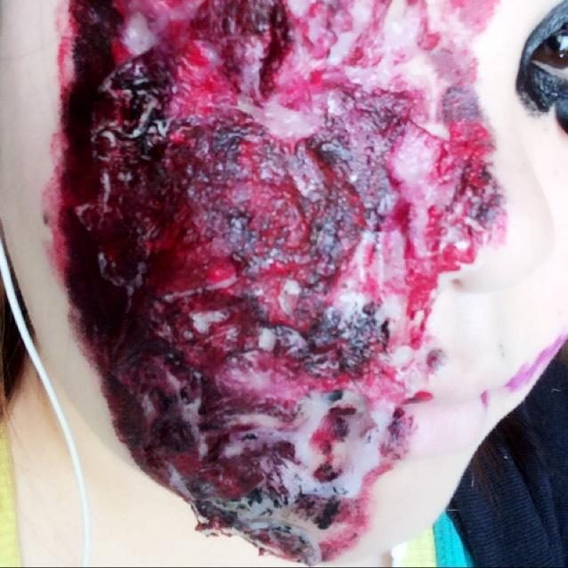 ケロイドに見えるように意識して貼っていく。 (所々、爛れて皮膚が剥がれそうになっているのをイメージして崩しながら、ボコボコした質感になるようにするとよりリアル)