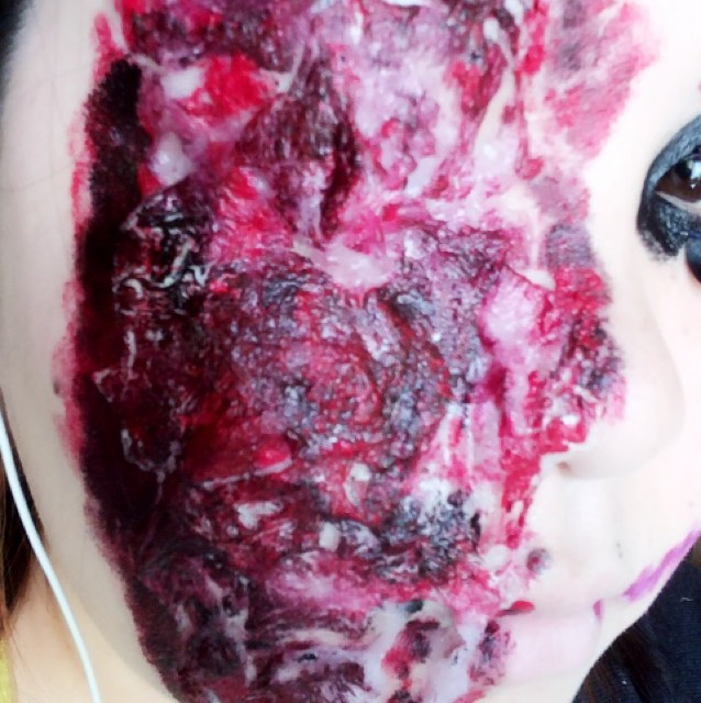 私は敢えて塗りムラを作っています。 この時、ケロイドと肌の境目から少しオーバーする感じで着色すると色合いが肌に馴染みます。