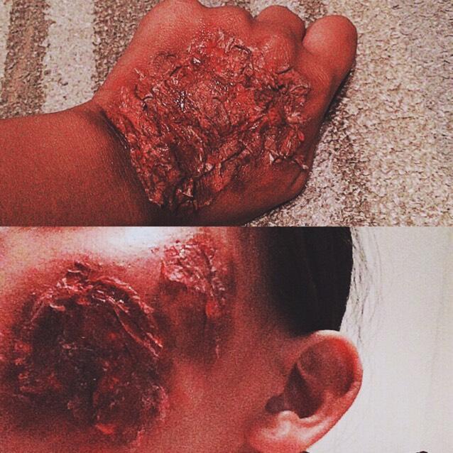 傷メイクのAfter画像