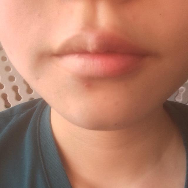 唇の色消しにコンシーラーをはたいています。 左はナチュラルに色付きリップを使用。