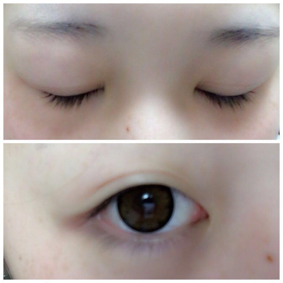 片目が線の入った一重なの二重にします。カラコンはPOPLENSのバブルブラウン?です( ˙-˙ )!アイプチしたあとに上から抑えると自然な感じになると思います!