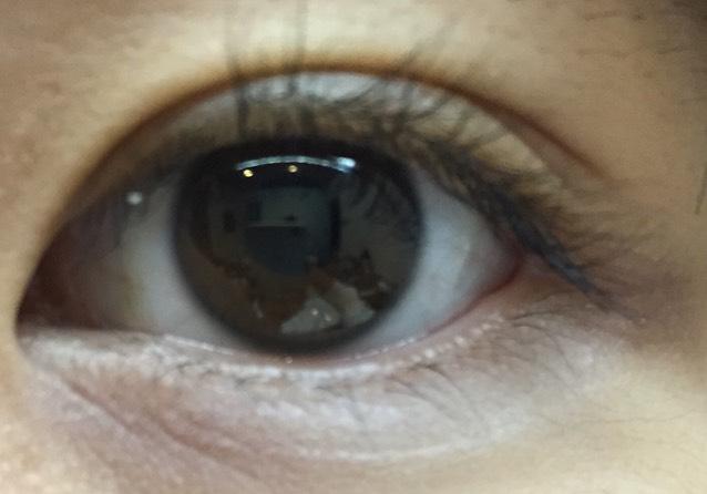 目元が少し明るくなりました。