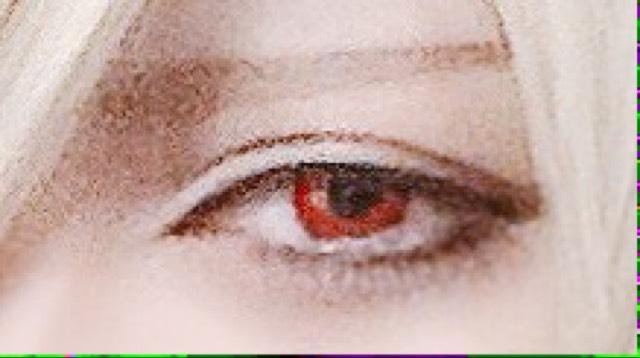 red Eye (ダブルライン)のAfter画像