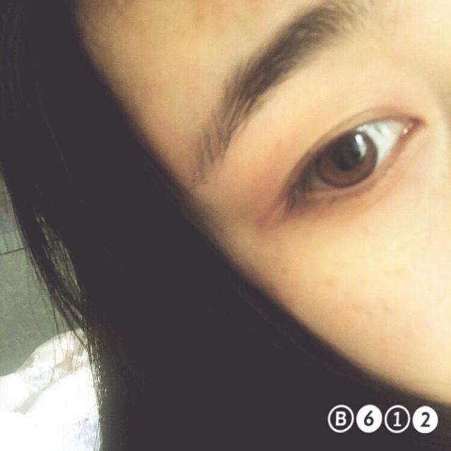 double fold eyelids(๑>ᴗ<๑)のBefore画像