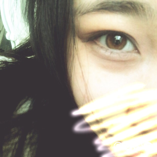 double fold eyelids(๑>ᴗ<๑)のAfter画像