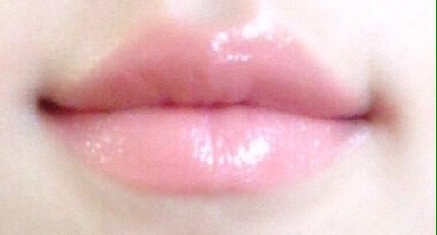 タラコ唇のトップ画像