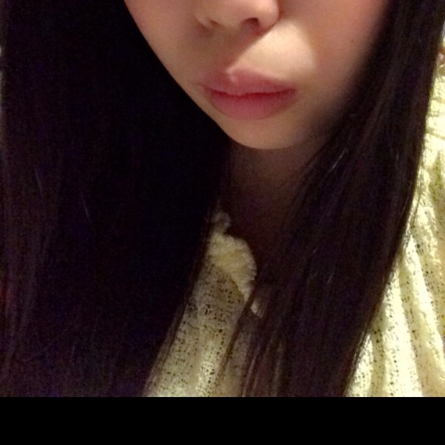 ぷっくり唇のBefore画像