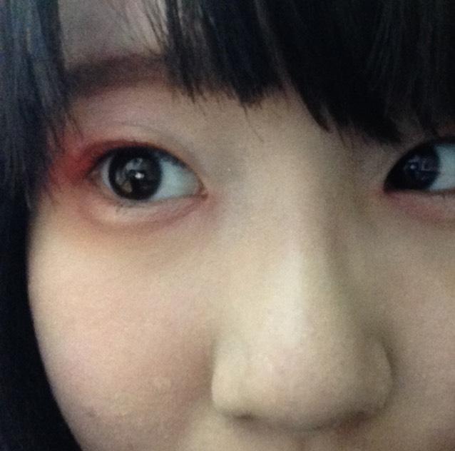 キャンメイク赤シャドウを作った涙袋にのせていきます。 このとき、目頭と目尻には赤をのせますが、中央はあまりのせないようにします。