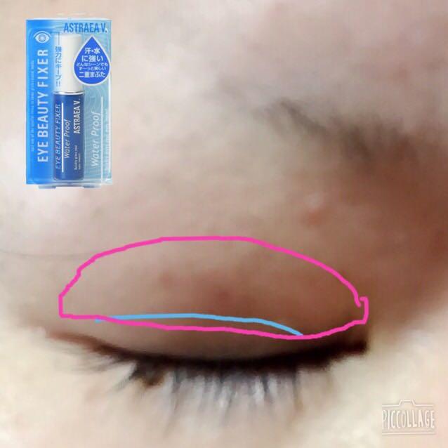 水色の線が本来の二重の線。 ピンクでかこってある場所に、アストレアヴィルゴのアイビューティーフィクサー(二重のり)をぬる この二重のりは強力なので先にコンタクト入れておいた方が良いかも