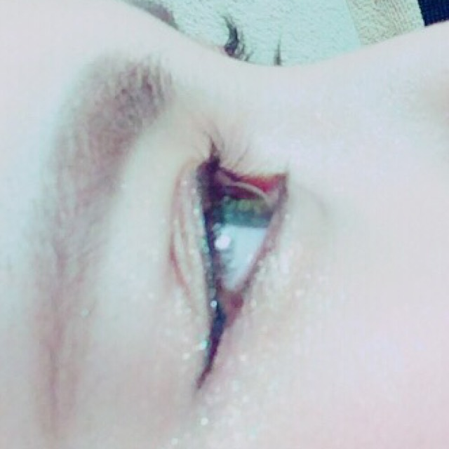 eyeのAfter画像