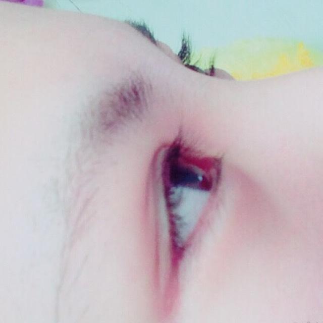 eyeのBefore画像