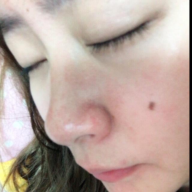 透明感抜群のお肌作り方♡♡のBefore画像