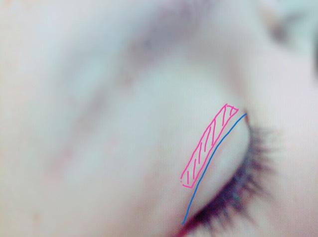 元の二重線の上に絆創膏を貼る。 貼るときの注意としては 乳液や、化粧水、下地などを塗る前に貼ること( ˆoˆ )/ そして伸ばして貼らないこと。 目の形にそって貼ること。