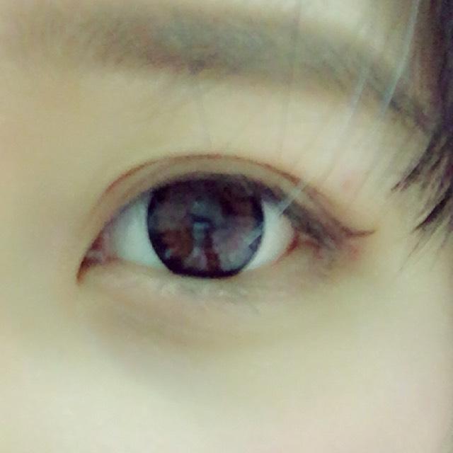 もう片方の目