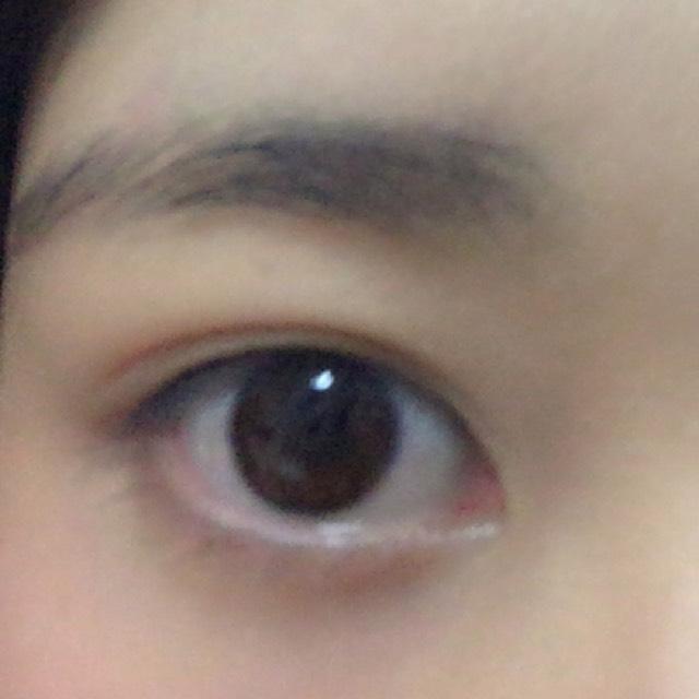 右目のBefore画像