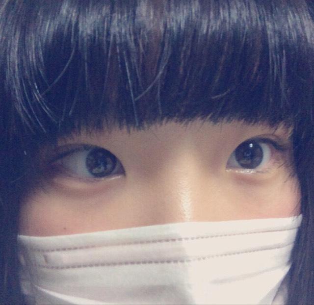 奥二重→二重
