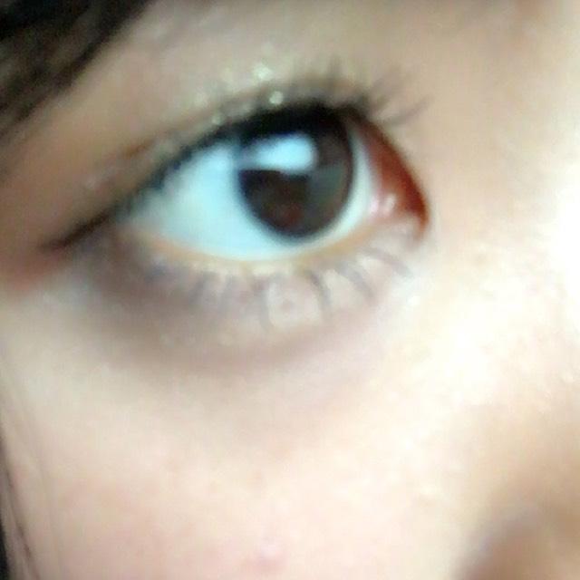 デカ目裸眼一重のAfter画像