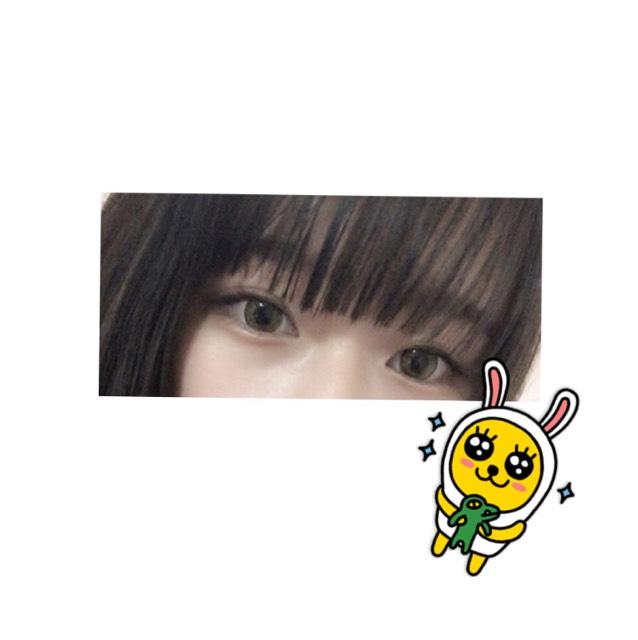 一重→二重のAfter画像