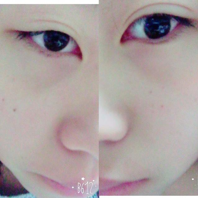 目の腫れを治す方法~part1~のBefore画像