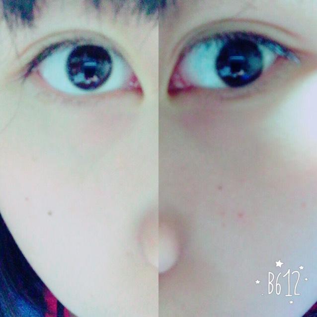 目の腫れを治す方法~part1~のAfter画像