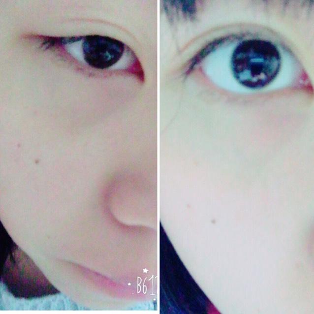 目の腫れのトップ画像