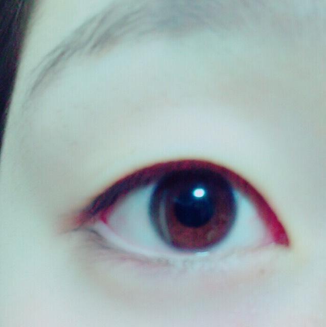 單眼→雙眼のBefore画像